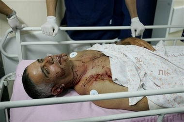 and IDF soldiers wounded in the battle for a free World. The cost of facing suicide bombers