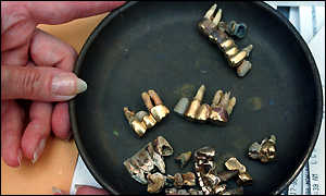 Gold teeth revoved from Jews in Nazi consentration camps. Photo from Holocaust Museum.