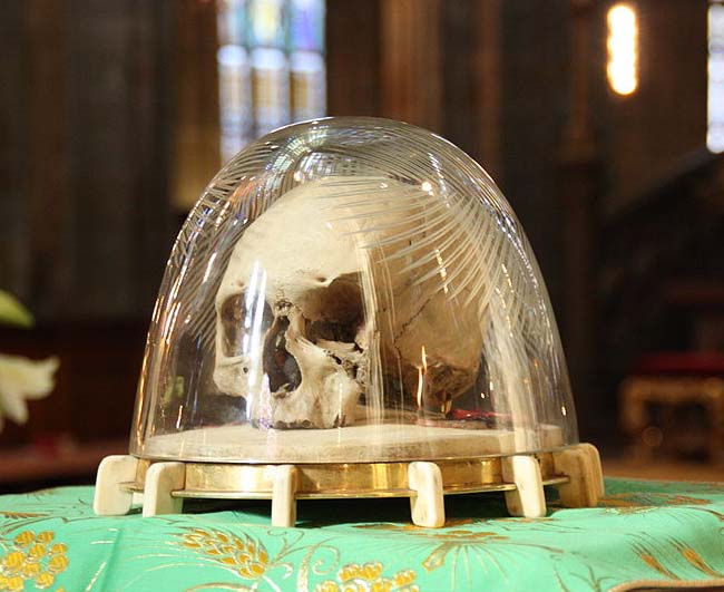 "The claimed to be ""holy"" skull of Saint Adalbert of Prague."