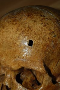 The hole in the skull of the Pope made many speculate in hs possible murder.