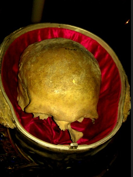 This skull is not of Pope Lucius. But an object of fraud and shame.