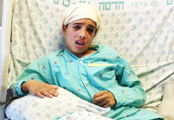 Claimed executed Ahmed Mansra (13) has ben given medical treatment at a hospital in Jerusalem.